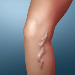i vasc varicose veins treatment